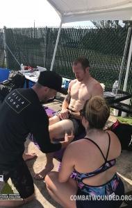 SCUBA Challenge Prosthetics Research