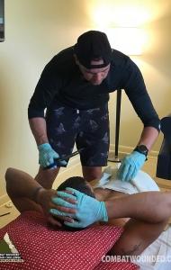 SCUBA Challenge Prosthetic Fin Casting